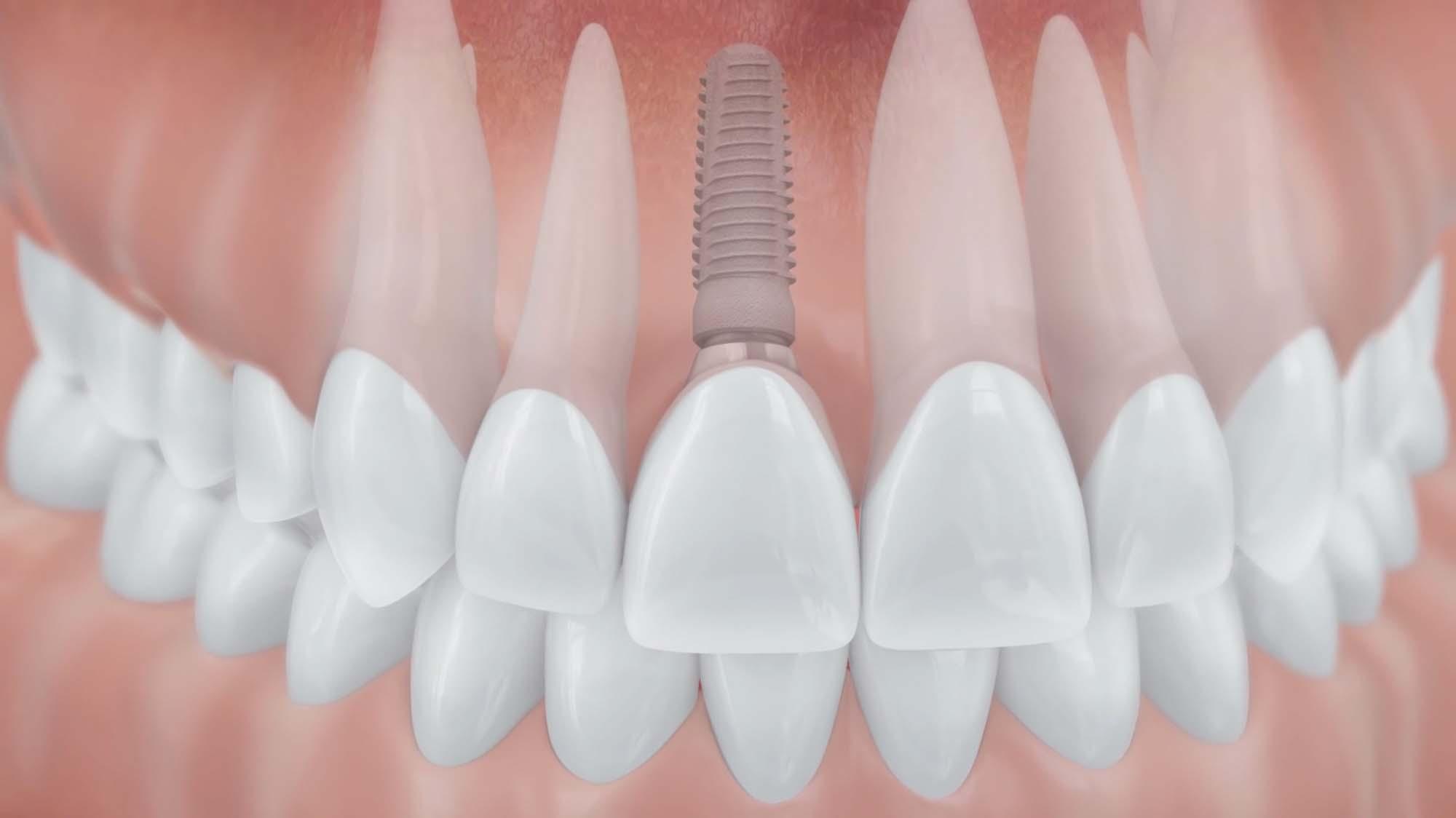 Zahnimplantat – Zahnarzt Dr. Holler und Kollegen in Arzberg